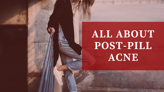 All About Post-Pill Acne